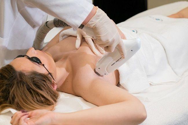 Care este diferenta intre epilarea cu laser si cea IPL?